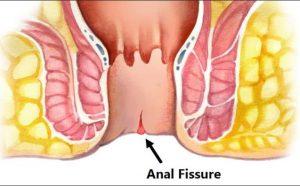 tratamiento de fisura anal en guadalajara